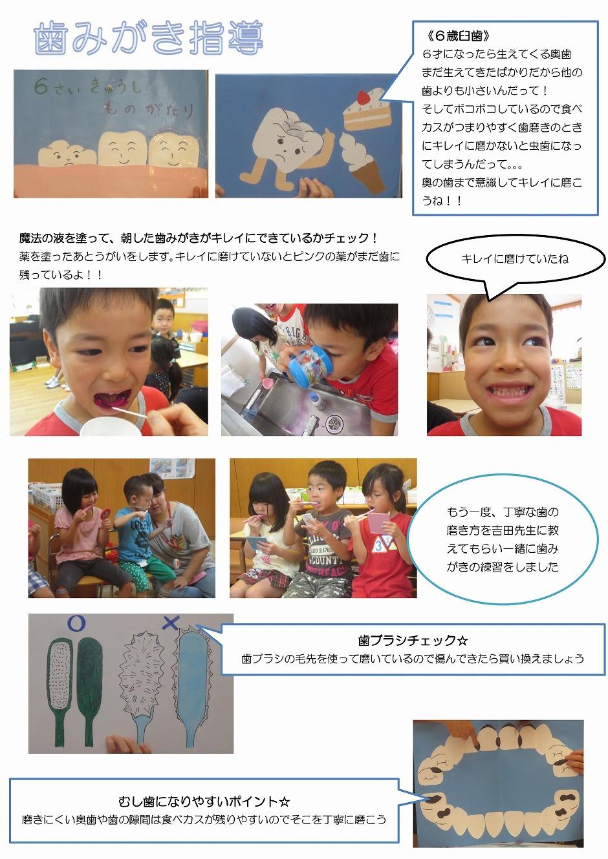 Microsoft Word - 歯みがき指導(きりん)
